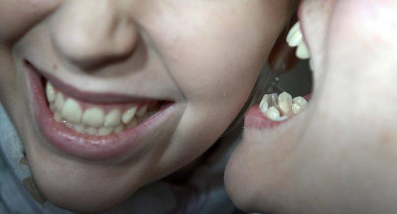 TANDSPÅR Den misshandlade unga kvinnan fick skadorna dokumenterade på akuten, bland annat ett bitmärke med tandavtryck under ögat. Bilden är arrangerad.